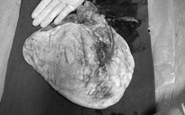 Nữ sinh 16 tuổi có khối u buồng trứng lớn chứa 7.000ml dịch