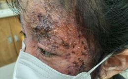 Gương mặt bé gái 8 tuổi sần sùi, mưng mủ vì điều trị nấm da sai cách