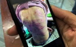 Công an điều tra trình báo bé gái bị mẹ đẻ bạo hành, người tình của mẹ xâm hại tình dục