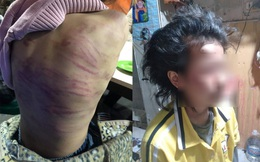 Hội LHPN đề nghị xử lý nghiêm đối tượng bạo hành và xâm hại bé gái 12 tuổi