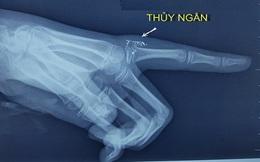 Bệnh nhi bị nhiễm độc thủy ngân do nhiệt kế đâm vào tay