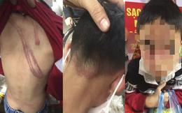 Vụ cháu bé 7 tuổi bị bạo hành dã man: Công an làm việc với người bố