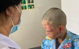Đốt cồn theo clip trên mạng, bé 10 tuổi bị bỏng toàn bộ vùng mặt
