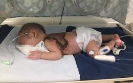 Mẹ dùng kim khâu chích mụn cho con, bé sơ sinh bị nhiễm trùng huyết, hoại tử lưng