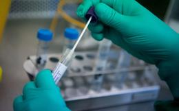 Bộ Y tế xác nhận có 33 nhiễm Covid-19 lây nhiễm trong nước
