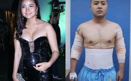 """Sao Việt đột ngột """"phát tướng"""", lộ bụng mỡ: Người nhanh chóng đi phẫu thuật, người mặc kệ dư luận"""