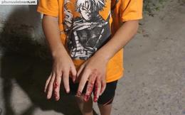 Người cha đánh nát tay con tại Hóc Môn đã đi khỏi nơi cư trú