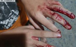 Vụ cha đánh nát tay con, bắt đi bán vé số: Cần khởi tố ngay vụ án