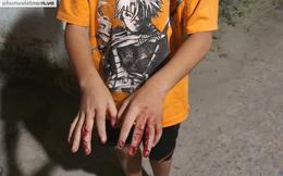 Người cha tại Hóc Môn thừa nhận với công an đã đánh dã man con trai