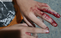 Vụ người cha tại Hóc Môn đánh con dã man: Dù trẻ thương tật dưới 11% cũng phải khởi tố