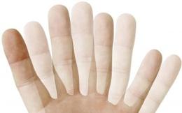 Song thị là gì? Cần làm gì khi mắt bị chứng song thị?