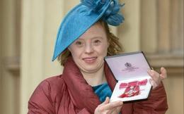 Cô gái Down được Hoàng gia Anh vinh danh
