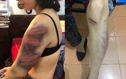 Hà Nội: Một phụ nữ kêu cứu vì bị đánh đập dã man