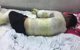 Can đựng xăng phát nổ, hai vợ chồng ở Nghệ An nguy kịch