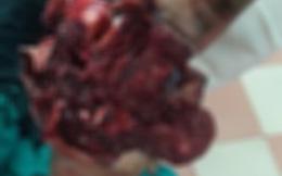 Học sinh lớp 9 bị nát tay phải vì học làm pháo trênyoutube