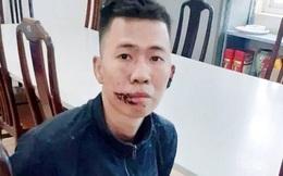 Hà Nội: Khởi tố hung thủ giết chết mẹ, đâm bố nguy kịch