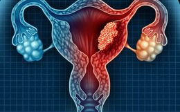 Nữ sinh mới 15 tuổi đã bị u nang buồng trứng