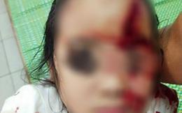 Bé 6 tuổi bị chó cắn nát mặt