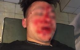 Can đồng nghiệp bị hành hung, một bác sĩ bị đánh gây thương tích nặng