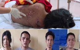 Cô gái bị tra tấn thương tích 96%, bị ép ăn cơm độn ớt bột