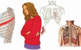 Đau dây thần kinh liên sườn là gì? 8 điều cần biết về đau dây thần kinh liên sườn