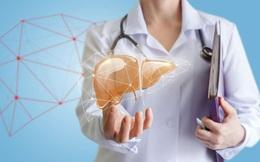 3 điều nên làm khi chăm sóc cho bệnh nhân xơ gan còn bù