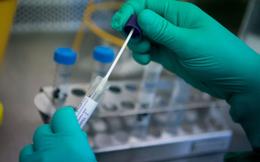 Thêm 3 bệnh viện tại TPHCM được xét nghiệm SARS-CoV-2