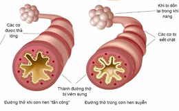 Bệnh hen suyễn có chữa được không?