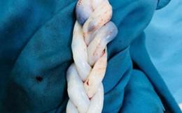Song thai có dây rốn như tóc tết