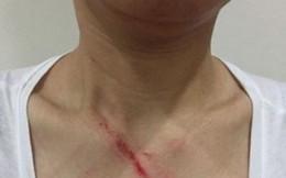 Nhắc không nhổ bậy trong thang máy, 1 phụ nữ bị đánh túi bụi