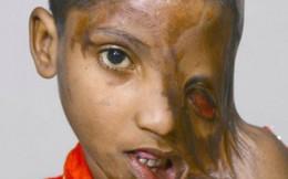 """Khuôn mặt """"tan chảy"""" của bé gái 8 tuổi bị cha tạt axit"""