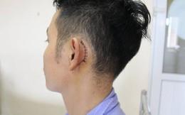 Cắm sạc điện thoại để bên đầu giường khi ngủ, bệnh nhân bị thủng màng nhĩ