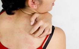 Những dấu hiệu của ung thư da mà bạn nên biết