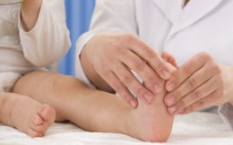 Trẻ viêm khớp không điều trị kịp thời dễ bị biến dạng khớp