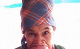 Người phụ nữ u che kín miệng mong có tiền phẫu thuật