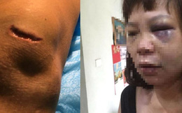 Từ vụ chồng cắt gân vợ ở Quảng Ninh: Phụ nữ cần làm gì để bảo vệ bản thân?