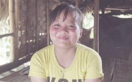 Nụ cười trở lại với cô bé mắc bệnh Lupus ban đỏ