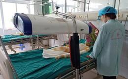 Thông tin mới về sức khỏe của 3 trẻ mầm non bị bỏng ở Hà Nam