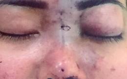 Người phụ nữ 30 tuổi bị mù mắt sau khi tiêm filler