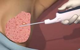 Hơn 200 phụ nữ được sinh thiết u vú bằng kỹ thuật hỗ trợ hút chân không