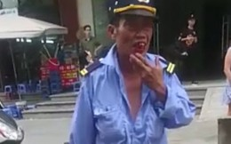 Cư dân Linh Đàm bất bình trước cảnh bảo vệ già bị thanh niên đánh chảy máu mồm