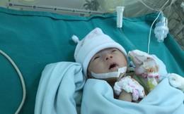 Phẫu thuật tim cứu bé 6 ngày tuổi, chỉ nặng 1,4 kg
