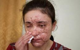 IS rao bán 'nô lệ tình dục' giá... 12.500 USD