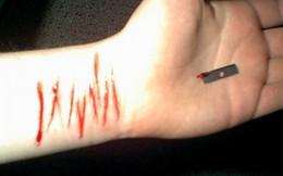Không được đi du học, nữ sinh tự cắt 16 vết vào tay