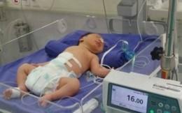 Cứu sống bệnh nhi 1 giờ tuổi nội tạng ngoài thành bụng