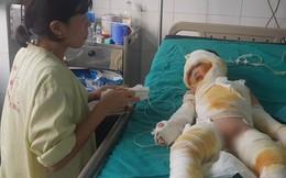 Vụ 3 trẻ mầm non bị bỏng nặng: Đình chỉ hoạt động nhóm trẻ tư thục Tuổi Thơ