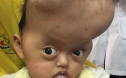 3 người trong gia đình bị não úng thủy bẩm sinh