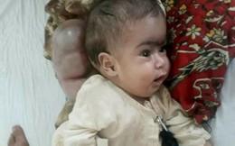 Bé 3 tháng tuổi mang bướu khổng lồ sau gáy mỏi mòn chờ phẫu thuật
