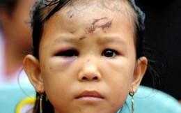 Những đứa trẻ vô gia cư sau động đất ở Indonesia