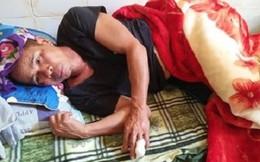 Nghệ An: Đi làm ruộng, một người dân bị lợn rừng cắn đứt ngon tay
